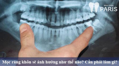 Phải làm gì khi mọc răng khôn để giảm đau nhanh nhất?