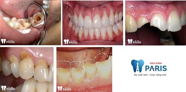 Tẩy trắng răng WhiteMax - Răng sáng gấp 10 lần - Cam kết bền đẹp 8