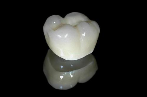 Có NÊN trồng răng sứ không cho răng bị mất? Lời khuyên của bác sĩ 2