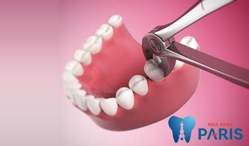 Nhổ răng có ảnh hưởng đến sức khỏe không? 1