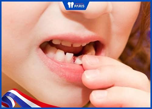 Răng lung lay do viêm lợi