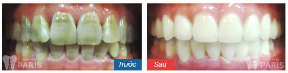 Kem tẩy trắng răng tại nhà - LỢI HAY LÀ HẠI nhiều hơn!!! 2