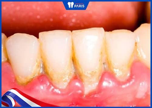 trẻ bị sưng lợi do mảng bám cao răng