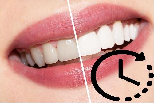Tuân thủ về thời gian sử dụng thuốc tẩy trắng để không làm ảnh hưởng đến men răng