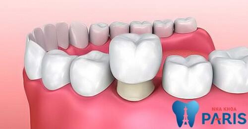 Bọc răng sứ là gì? Quy trình bọc răng sứ đảm bảo chất lượng tốt nhất 1