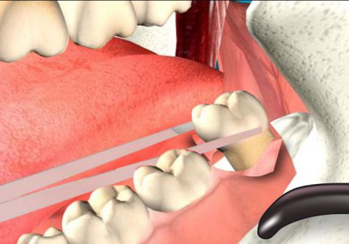 sưng lợi mọc răng khôn uống thuốc gì