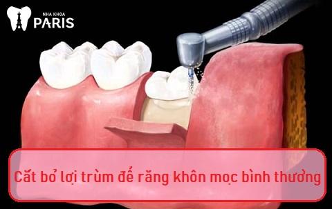 Khi răng khôn mọc thẳng, chỉ cần cắt lợi trùm để răng mọc bình thường