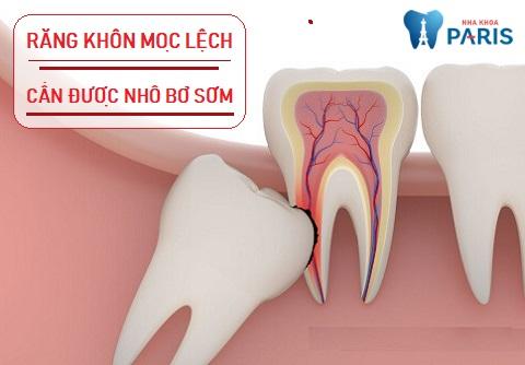 Khi răng khôn mọc lệch, cần rạch lợi và nhổ răng sớm