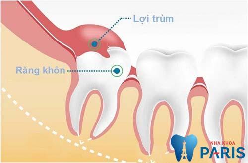 Hỗ trợ điều trị viêm lợi trùm răng khôn an toàn, không viêm nhiễm* 1