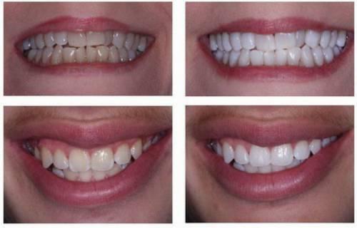 Cách làm trắng răng bị ố vàng ngay tại nhà nhanh nhất