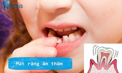 bị viêm chân răng phải làm sao