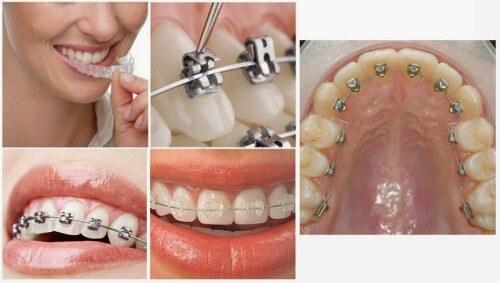 5 Lưu ý quan trọng khi niềng răng thưa và hô bạn CẦN PHẢI BIẾT 2