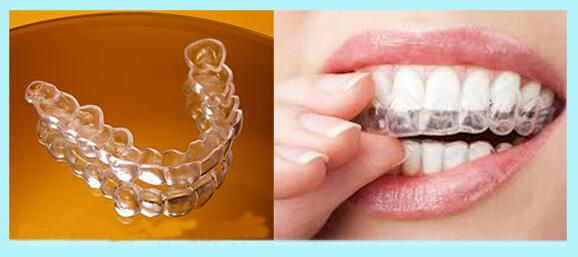 5 Lưu ý quan trọng khi niềng răng thưa và hô bạn CẦN PHẢI BIẾT 3