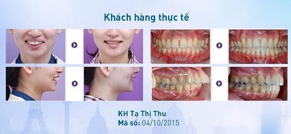 5 Lưu ý quan trọng khi niềng răng thưa và hô bạn CẦN PHẢI BIẾT 7