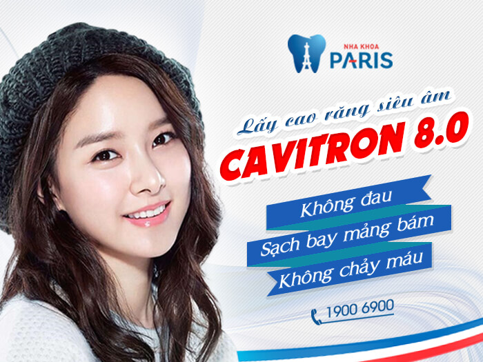 Công nghệ Cavitron BP 8.0 hiệu quả hơn so với lấy cao răng bằng baking soda