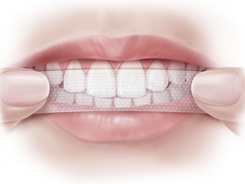 Tác dụng của miếng dán trắng răng KHÔNG AI HAY BIẾT