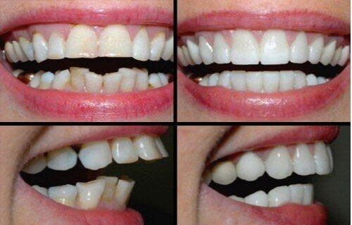 Niềng răng vẩu – Những vấn đề các chuyên gia luôn muốn bạn BIẾT