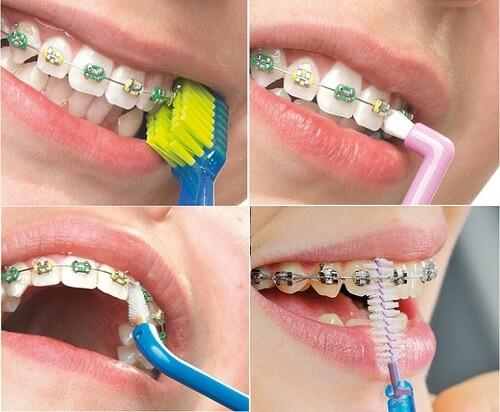 5 Lưu ý quan trọng khi niềng răng thưa và hô bạn CẦN PHẢI BIẾT 5