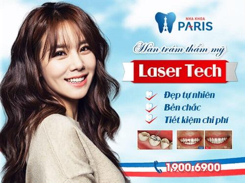 Trám răng có đau không? Không đau với công nghệ Laser Tech