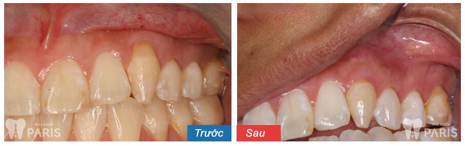 Nguyên nhân và cách chữa viêm nướu chân răng Hiệu Quả Vĩnh Viễn 5