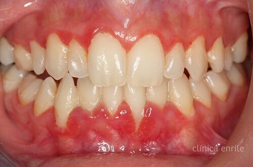 Nguyên nhân và cách chữa viêm nướu chân răng Hiệu Quả Vĩnh Viễn 2