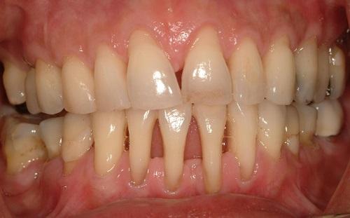 Nguyên nhân và cách chữa viêm nướu chân răng Hiệu Quả Vĩnh Viễn 3