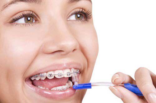 niềng răng có tác dụng gì 4