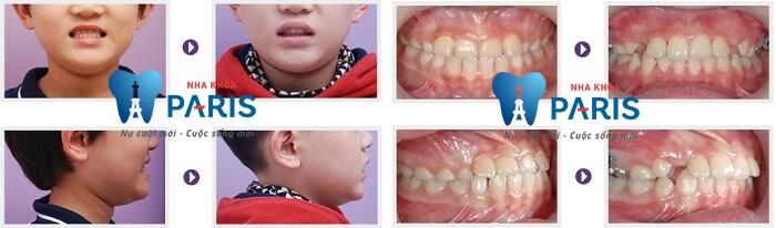 Những bệnh răng miệng trẻ em thường gặp - Các bà mẹ nên biết 5