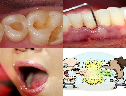 Bệnh răng miệng là gì? Cách chữa trị hiệu quả TRIỆT ĐỂ nhất