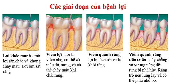 Bệnh răng miệng là gì? Cách chữa trị hiệu quả TRIỆT ĐỂ nhất 3