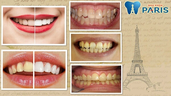 Tẩu trắng răng whitemax - giải pháp cho hàm răng xỉn màu, ố vàng