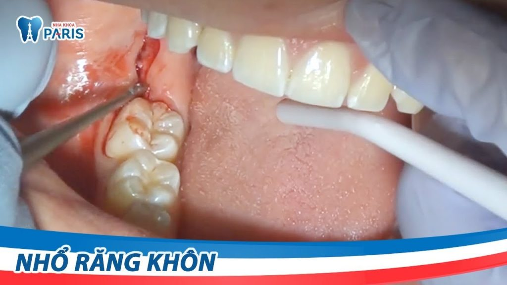 Video quy trình nhổ răng khôn mọc lệch tại nha khoa Paris