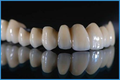 Bọc răng sứ có tốt không? [Chuyên gia giải đáp chi tiết nhất] 1