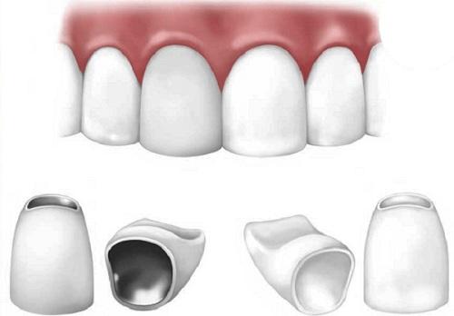 Bọc răng sứ có tốt không? [Chuyên gia giải đáp chi tiết nhất] 6