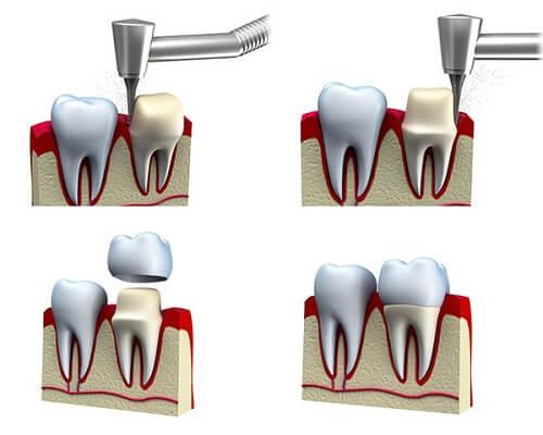 Bọc răng sứ có tốt không? [Chuyên gia giải đáp chi tiết nhất] 7