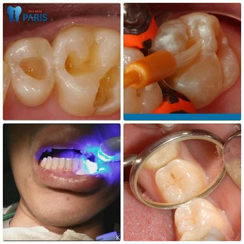 Hàn trám Laser Tech - Khắc phục răng nhanh chóng, an toàn, tiết kiệm