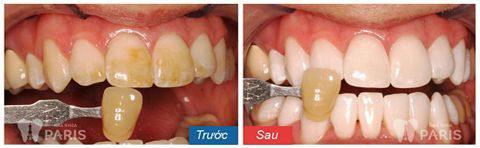 Bích Hường tẩy trắng răng