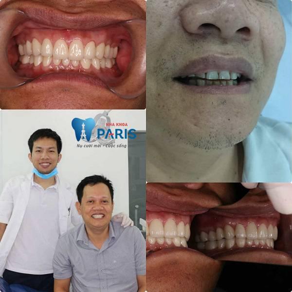 Phòng khám răng tốt ở TPHCM được Bộ Y tế cấp phép 5
