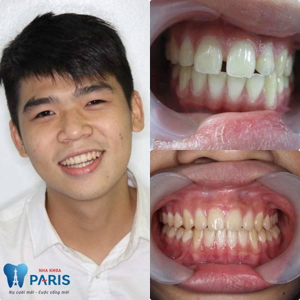 Phòng khám răng tốt ở TPHCM được Bộ Y tế cấp phép 6
