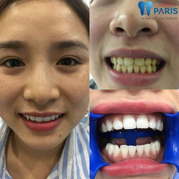 Phòng khám răng tốt ở TPHCM được Bộ Y tế cấp phép 7