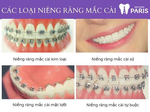 Các loại niềng răng mắc cài phổ biến hiện nay