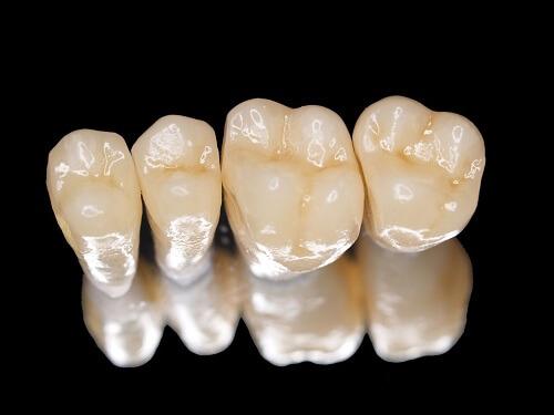 Răng sứ không kim loại giải pháp hoàn hảo cho răng xấu hỏng