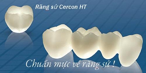 Răng sứ không kim loại giải pháp HOÀN HẢO cho răng xấu hỏng 3