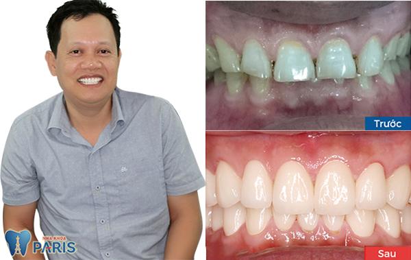 răng sứ nano shining 5s 4
