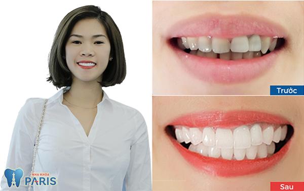 răng sứ nano shining 5s 5