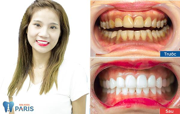 răng sứ nano shining 5s 2