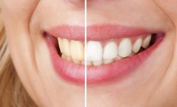 Tẩy trăng răng whitemax cho bạn màu răng trắng sáng tự nhiên