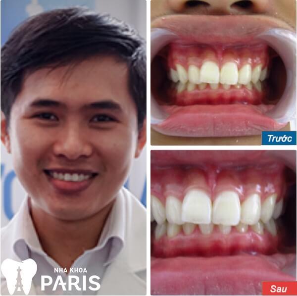 Tẩy trắng răng WhiteMax - Răng sáng gấp 10 lần - Cam kết bền đẹp 6