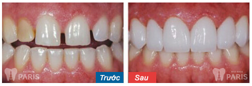 Thời gian trồng răng sứ mất bao lâu thì xong và cho thẩm mỹ cao? 2