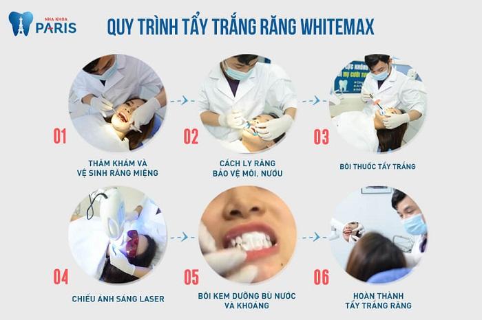 Tẩy trắng răng WhiteMax - công nghệ chuẩn Pháp
